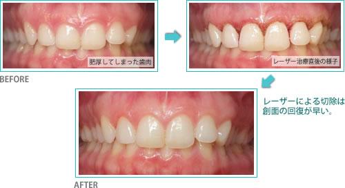 歯肉炎へのレーザー利用