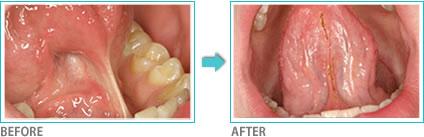 レーザーによる口腔軟組織の除去・切除