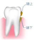 口内炎の消炎・除痛